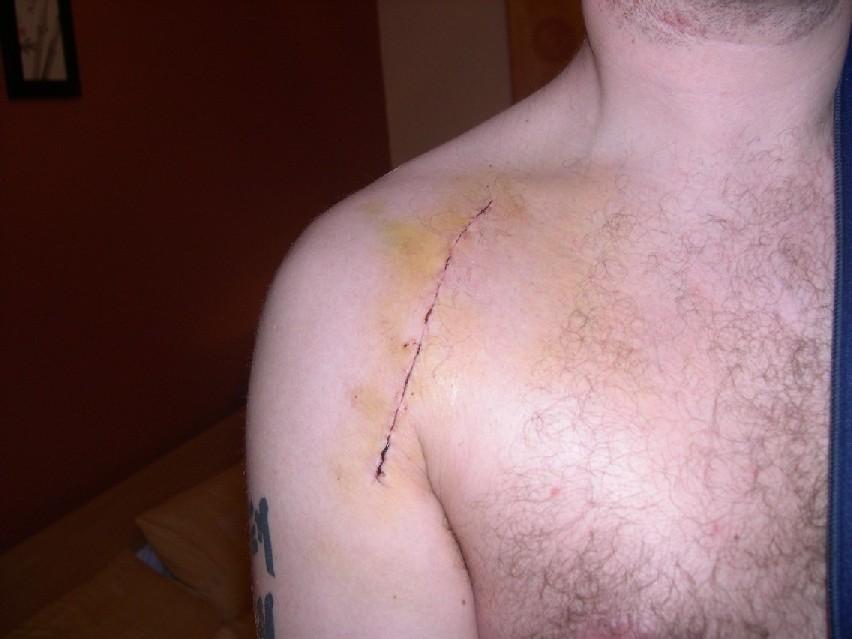 Вывих плечевого сустава открытая операция схема лечения врожденного вывиха т/б суставов