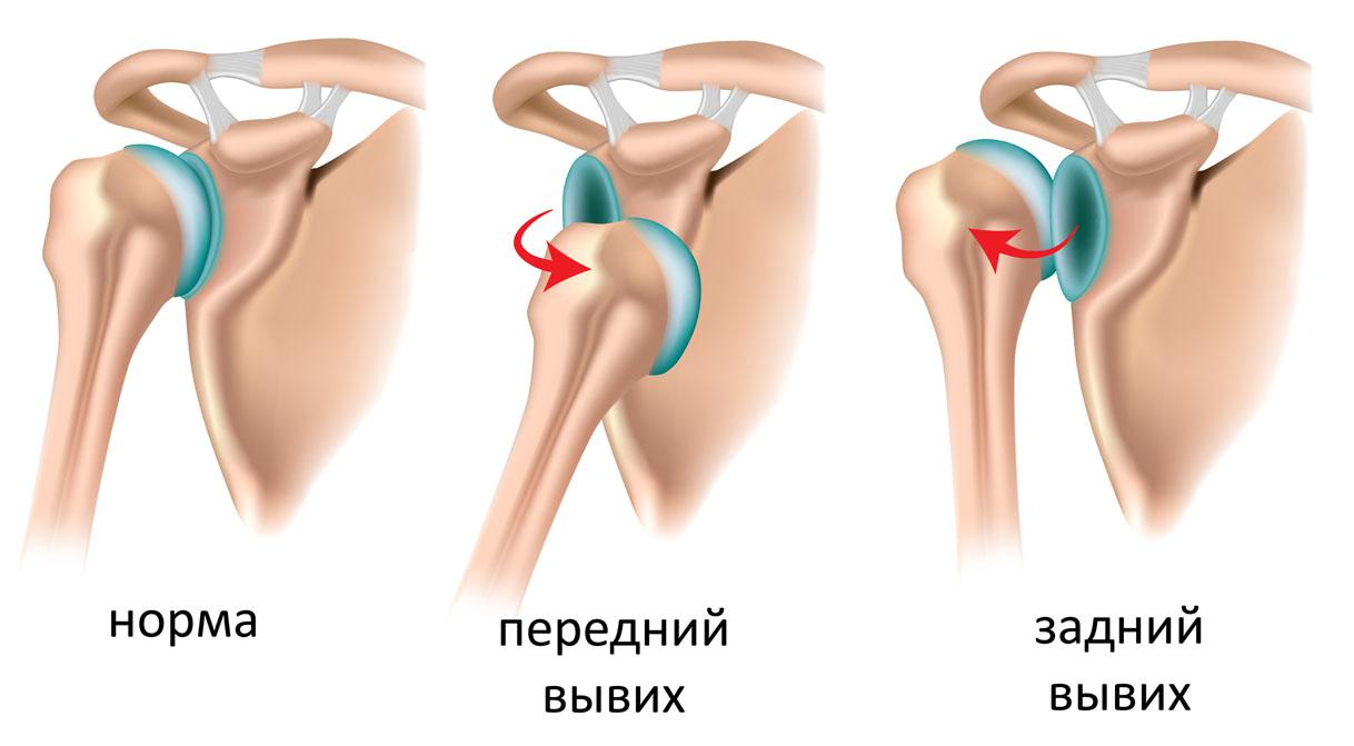 Bывих плечевого сустава Харьков, лечение вывиха плечевого сустава ...