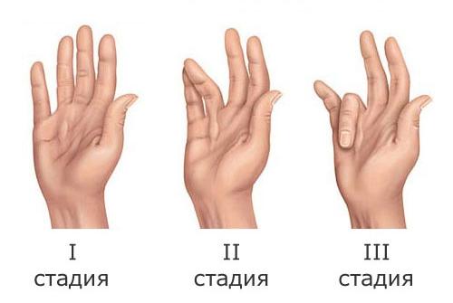 Контрактура Дюпюитрена
