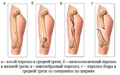 Перелом бедренной кости виды
