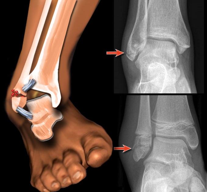 Пластины для переломов голеностопного сустава болезнь от которой разлогаются суставы