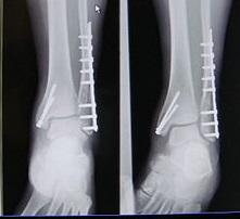 Перелом лодыжки лечение рентген
