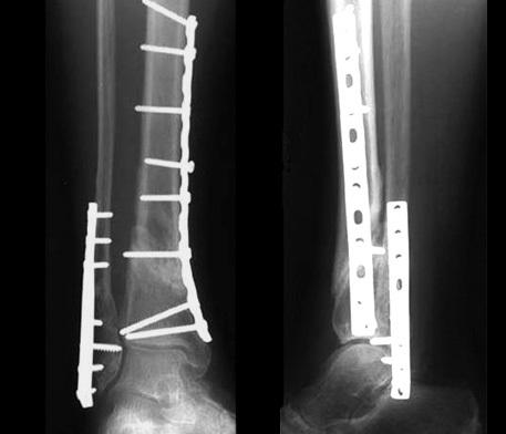 Перелом костей голени лечение