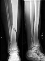 Перелом костей голени рентген