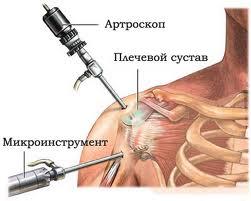 Синдром сужения плечевого сустава, Импинджмент синдром Харьков ...